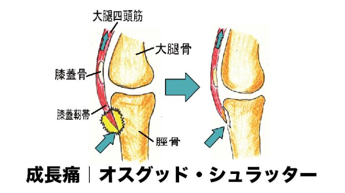 オスグッド・シュラッター|膝の成長痛